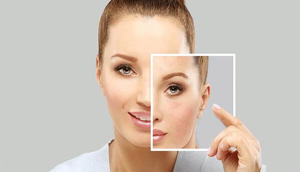 Pigmentation disorder