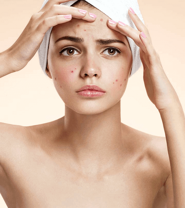 itchiness on your skin
