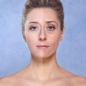 Wondering how to ace a younger looking skin